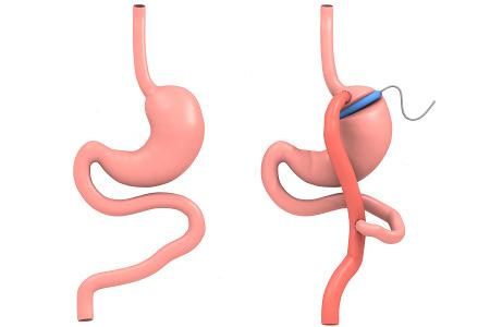 Показания к шунтированию желудка